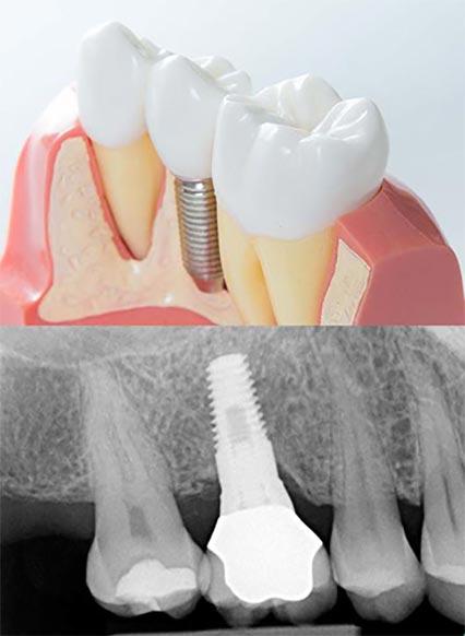 chirurgia-orale-impiantologia